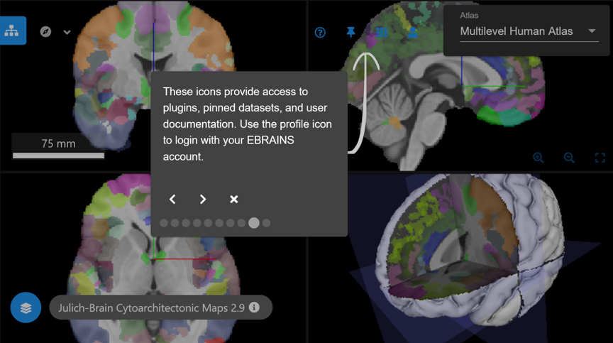 New Maps and Features in the EBRAINS Multilevel Human Brain Atlas - Image 2.png